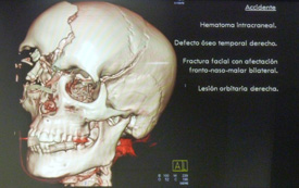 Maria de Villota's skull after her accident